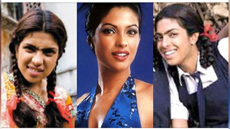 bollywood actress pictures after lip surgery