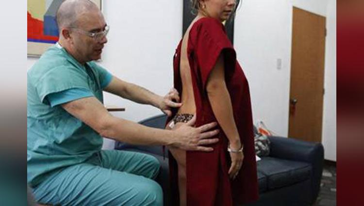 Dangerous butt implants