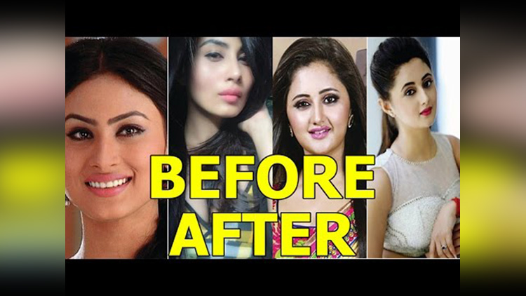 tv actresses before and after plastic surgery