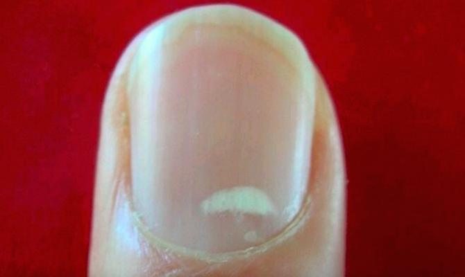 white marks on nails
