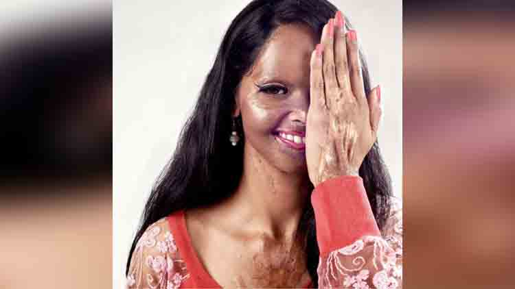 brave acid attack survivors best photography