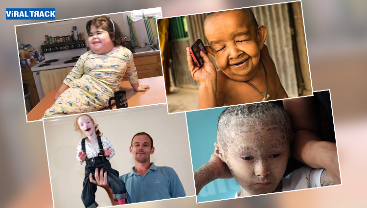 Inspirations Stories of Kids Challenged By God For Survival!