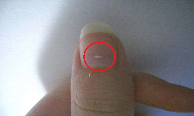 the real reason behind the white marks on nails