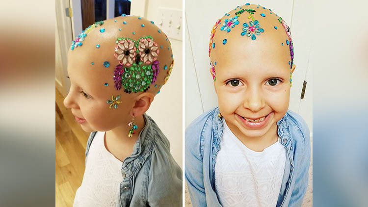 little girl suffering from alopecia