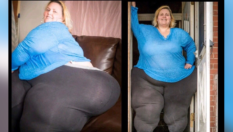 this fat model take obesity