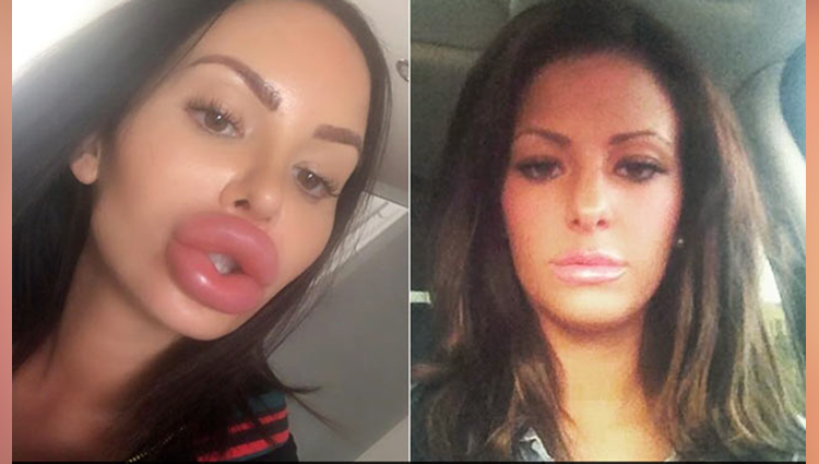 surgery addict spends £200,000 to look like barbie