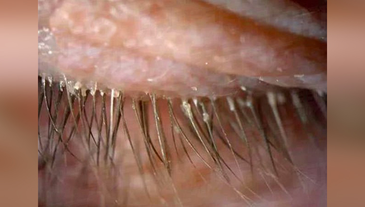 mites on woman eyelashes cause not wash pillow since last five years