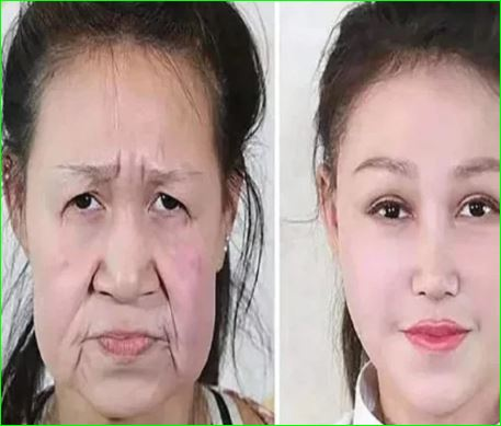 15 years old Girl looked like she was 60 surgery gives her a new face