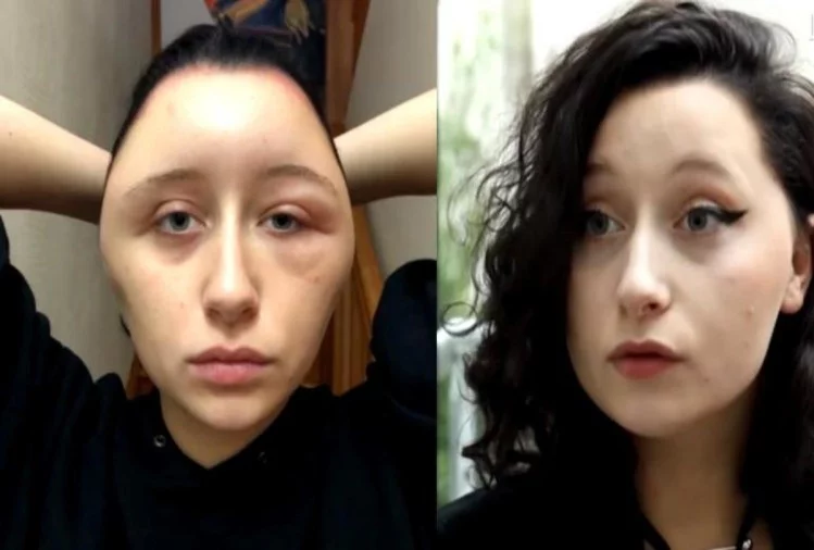 France hair dye reaction on woman face