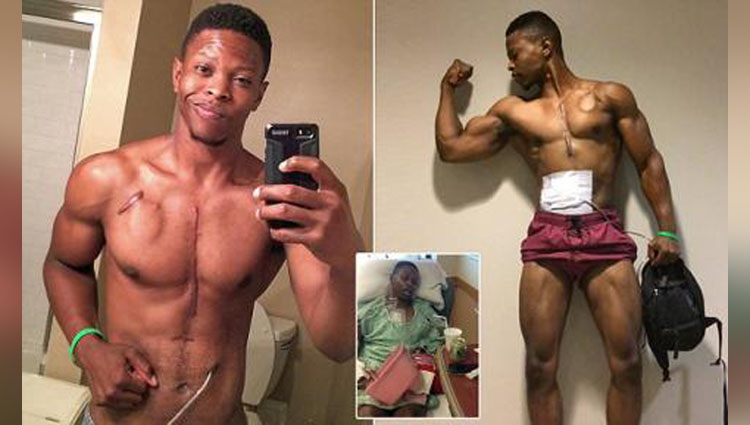 Meet the fitness model using his scars and artificial heart to inspire people