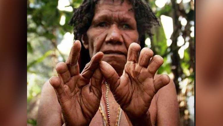 a tribe where women cut off a finger when a loved one dies