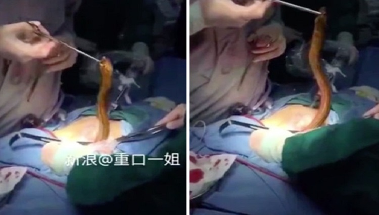 Doctor Pulls Live Eel Out Of Man Body After He Put It Up His Bum