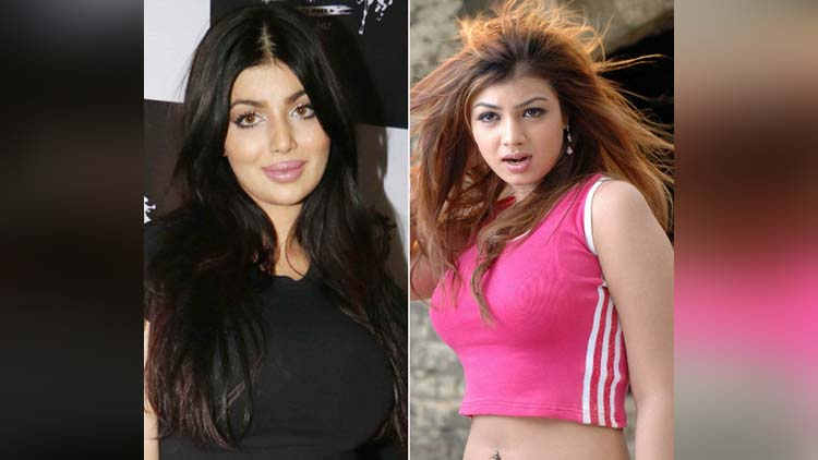Ayesha Takia Lip Injection Plastic Surgery New Look lip Face Shape