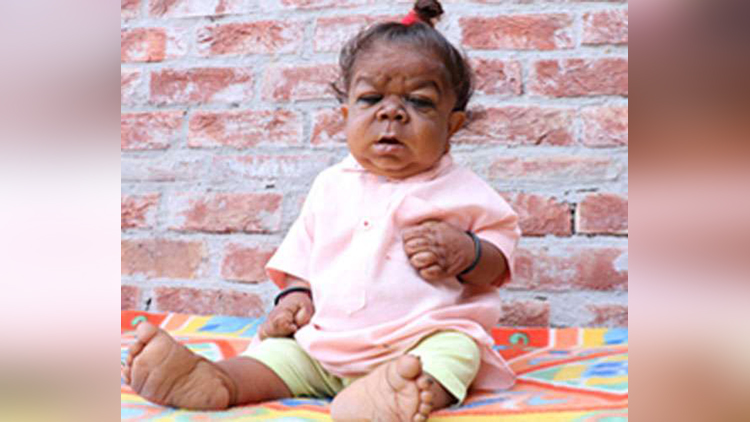 Mystery condition leaves Indian man just 23 inches tall