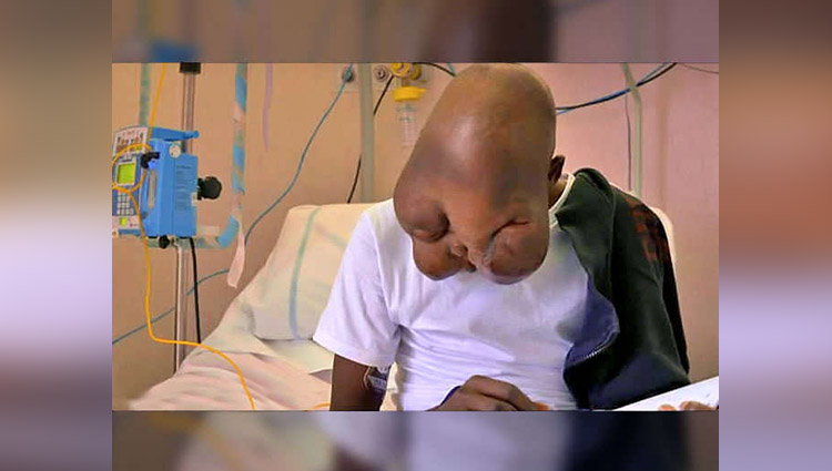 boy abandoned by mother due to facial tumour