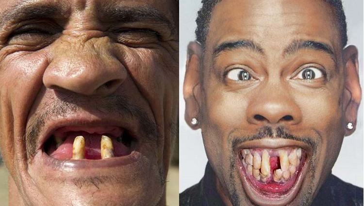 world most ugliest teeth people