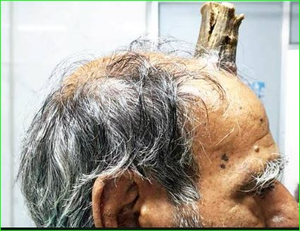 74 year old MP man grows devil horn after injury