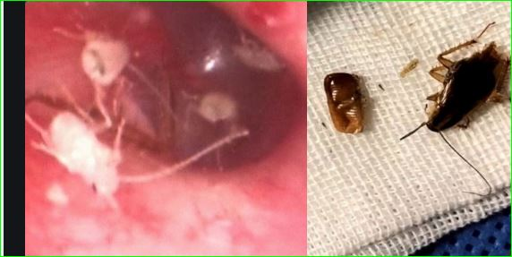 Family Of Cockroaches Found Living Inside Man Ear