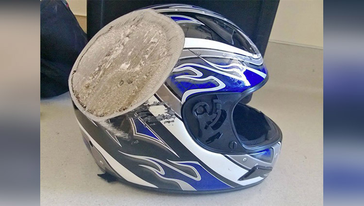 these photos are Reasons to Wear a Helmet