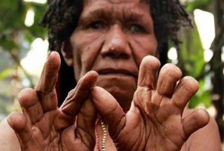 woman finger cut rituals in papua guinea