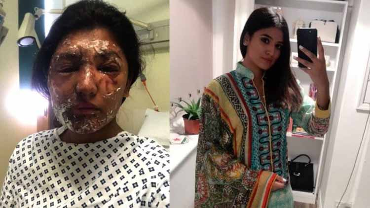 Acid victim reshma khan transformation after surgery