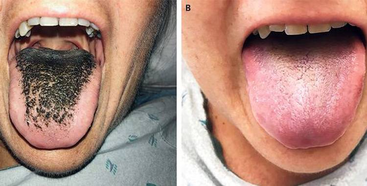 women black hairy tongue by antibiotics medicines