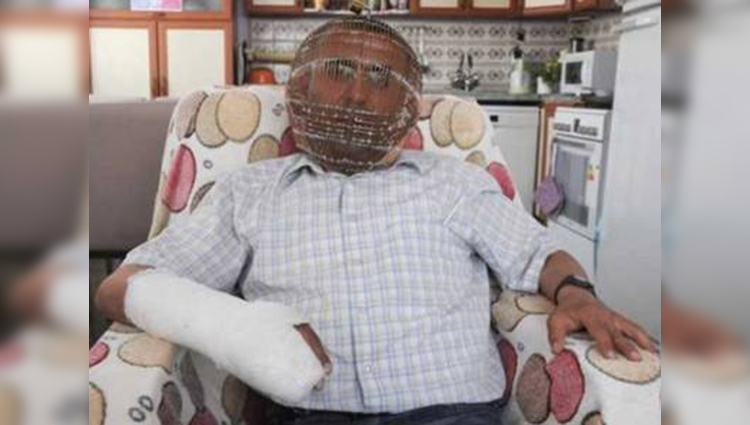 Turkish Guy Puts Cage On His Head To Quit Smoking