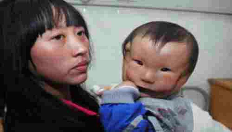 China's 'mask boy' has birth defect he appears to have two faces