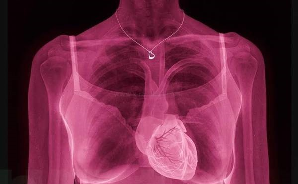 amazing pictures of X-rays click by Hugh Turvey